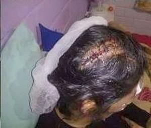 Esta fue una de las lesiones que sufrió la víctima de Mario Alzamora.