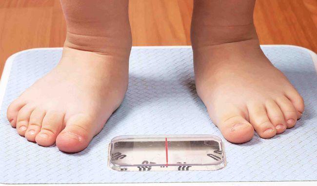 La obesidad infantil no es un juego